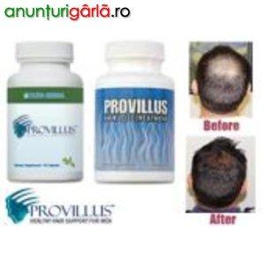Imagine anunţ Scapati definitiv de chelire cu Provillius